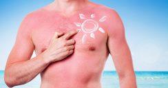 SunburnArt: Beauty-Trend mit Risikpotential