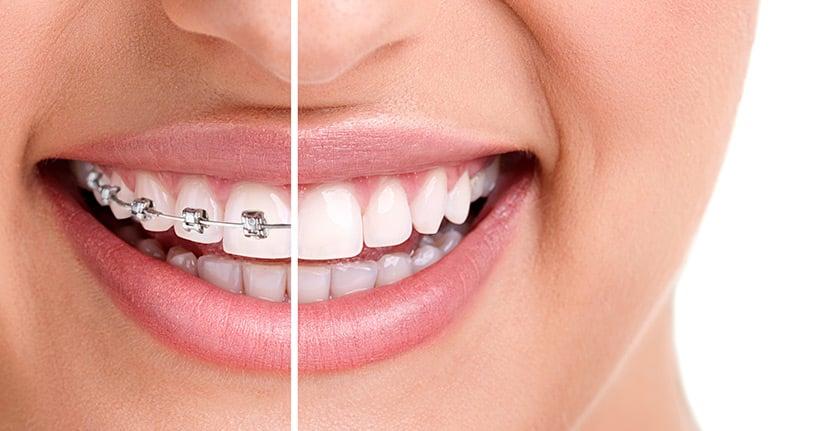 Eine Zahnspange im Erwachsenenalter – lohnt sich das?