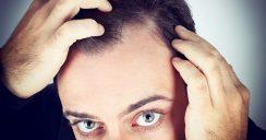 Neue Studie – kann Koffein doch Haarausfall verhindern?